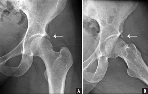 calcific tendonitis hip radiology adults