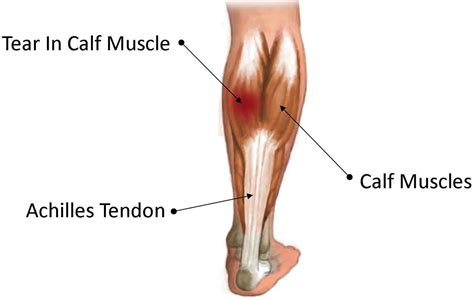 calf leg muscles pain causes gastrocnemius recession complications