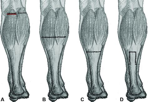 calf leg muscles pain causes gastrocnemius recession surgery
