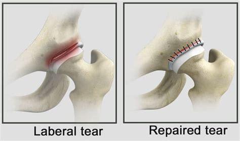can a torn hip tendon repair itself
