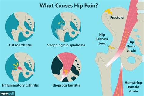 cause of one side hip flexor pain after hip replacement