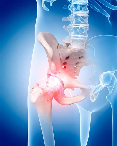 causes of chronic hip flexor pain protruding xiphoid joint
