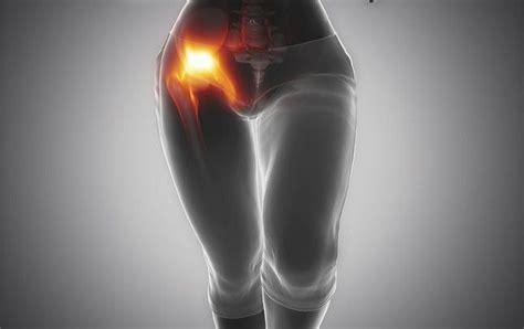 chronic hip flexor soreness due