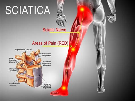 chronic pain in lower back and legs