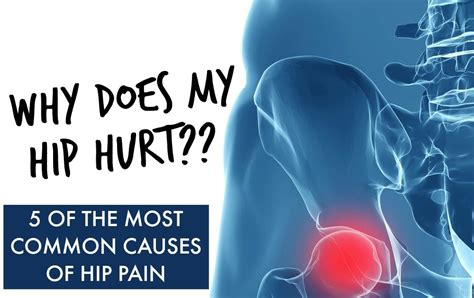 chronic severe hip flexor pain causes