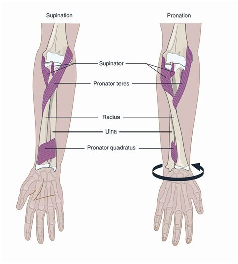 chronic tight muscles causes supination of forearm