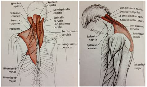 chronic tight muscles in neck and shoulders