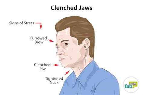 Clenching Definition