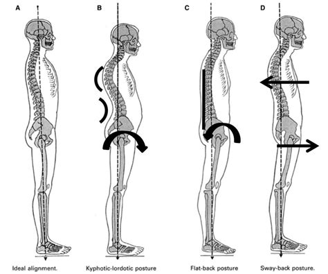 cog with hip flexor contracture and lordosis vs kyphosis of the spine