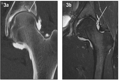 complete hip flexor tear mri vs cat scan