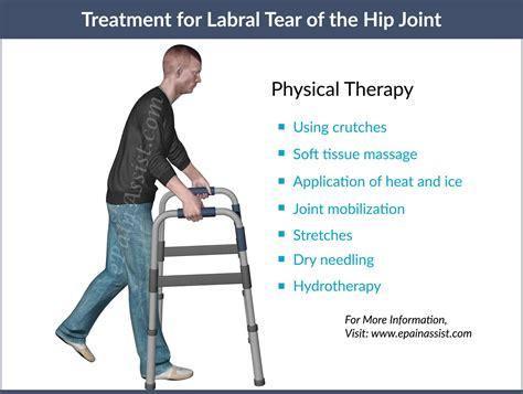 constant hip flexor pain after hip labral repair protocol cincinnati