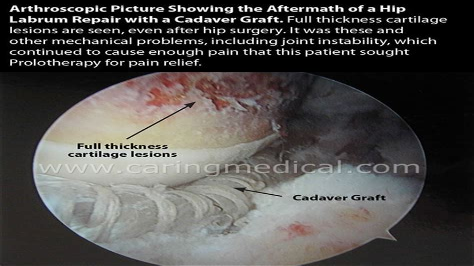 constant hip flexor pain after hip labrum repair success
