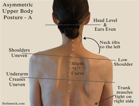 constant pain in right side of head and neck