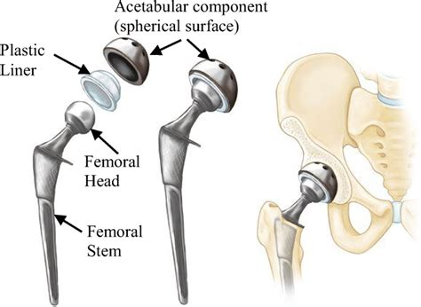diagram of total hip replacement surgery