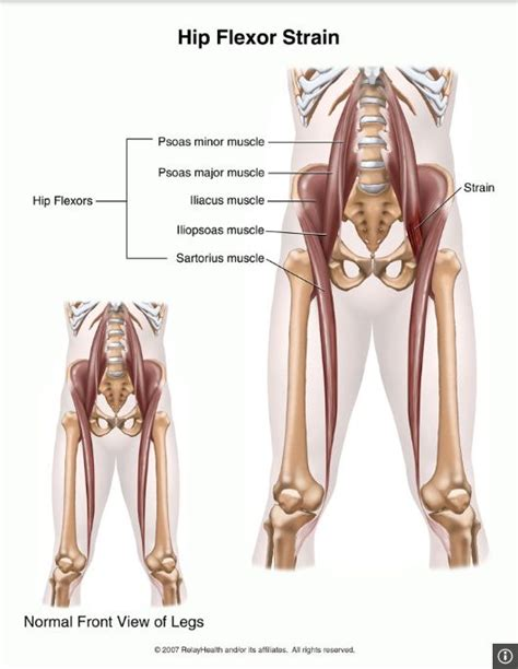 exercises for strained hip flexor muscles palpation of liver