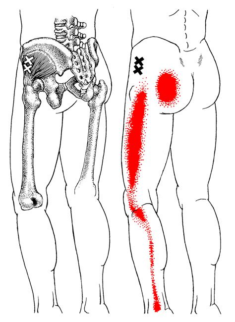 extremely tight hip flexors and gluteal muscles trigger points
