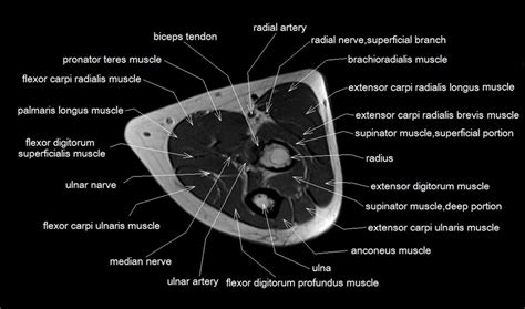 flexor and extensor muscles of forearm anatomy mri cardiac