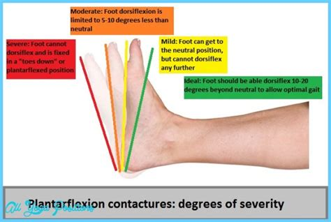 foot flexion muscles plantar flexion contracture