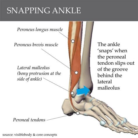 foot tendon snapping when walking