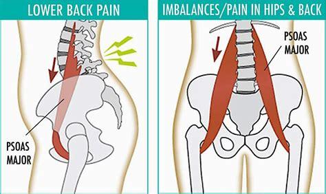 front hip flexor muscles iliopsoas syndrome diagnosis