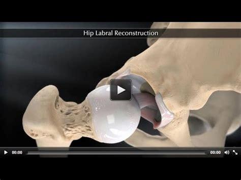 golf hip flexor pain after hip labral repair surgery