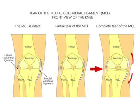 grade 1 knee sprain recovery time