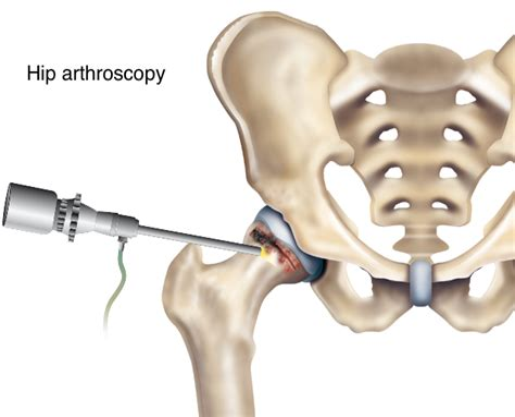 groin and hip flexor pain after hip arthroscopy surgery for labrum
