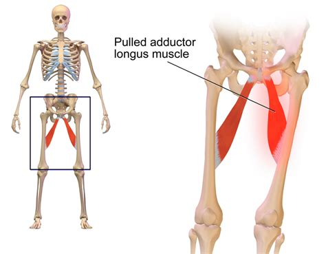 groin muscle pain hip diagrams of volcanoes eruption