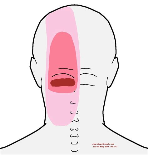 headache pain on back left side of head