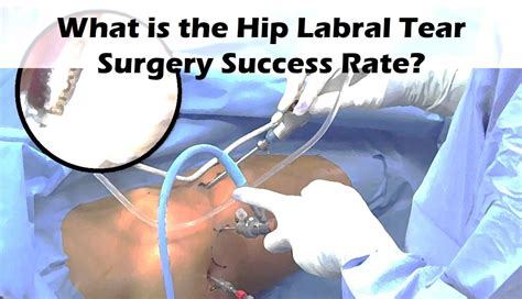 hip exercises for hip flexor pain after hip labral repair recovery