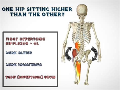 hip flexor abdominal imbalanced nutrition care