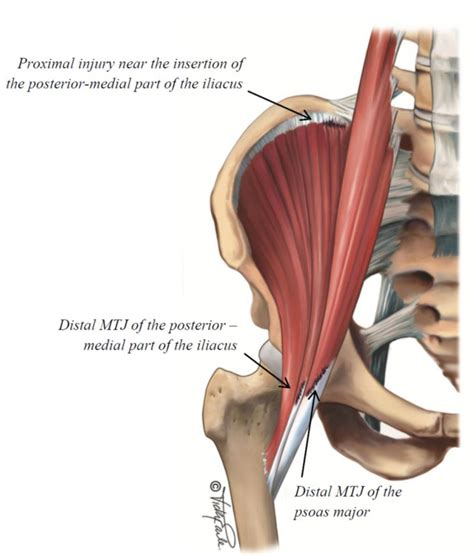 hip flexor and adductor injury