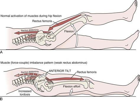hip flexor contracture and lordosis lumbar excesivamente
