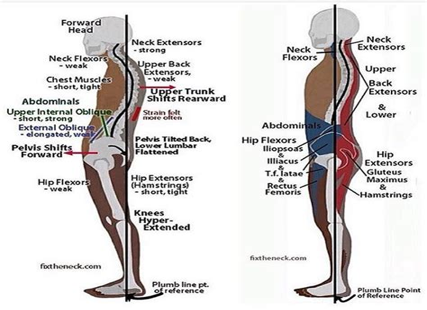 hip flexor contracture and lordosis lumbar fisiologia humana