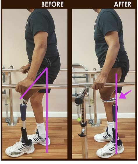 hip flexor contracture in amputee