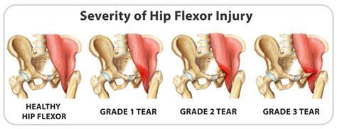 hip flexor diagram and injury severity scoring system