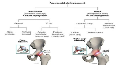 hip flexor hurts after sitting