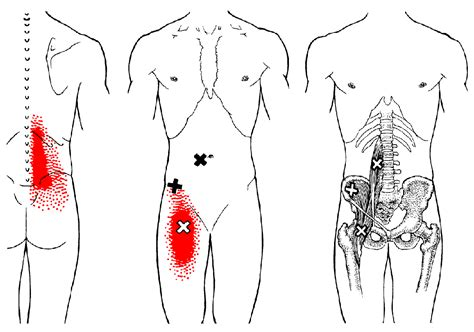 hip flexor iliopsoas pain referral patterns