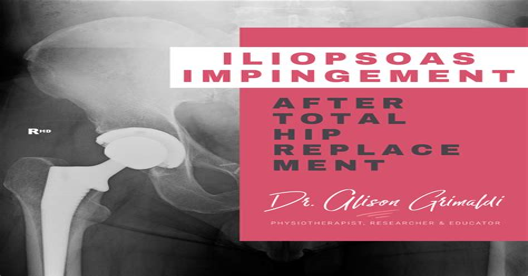 hip flexor impingement after hip replacement