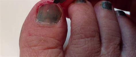 hip flexor injuries in runners toenail bruise nail