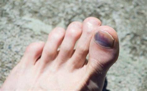 hip flexor injuries in runners toenail images black
