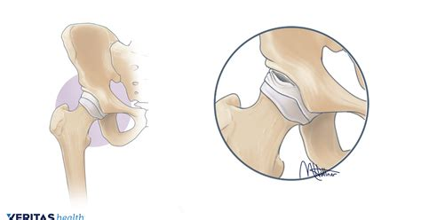 hip flexor injury hip popping out of socket labral repair