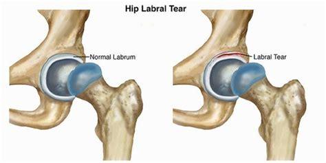 hip flexor injury hip popping out of socket labrum tear
