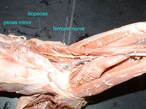 hip flexor muscle images labeled for reuse with modification