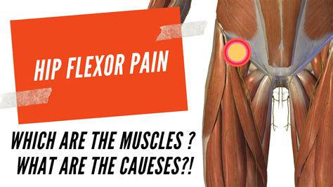 hip flexor muscles and knee pain