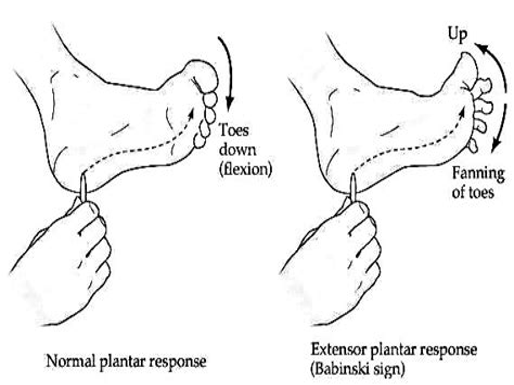 hip flexor muscles involved in plantar reflex