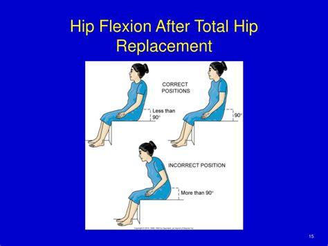 hip flexor pain after total hip replacement