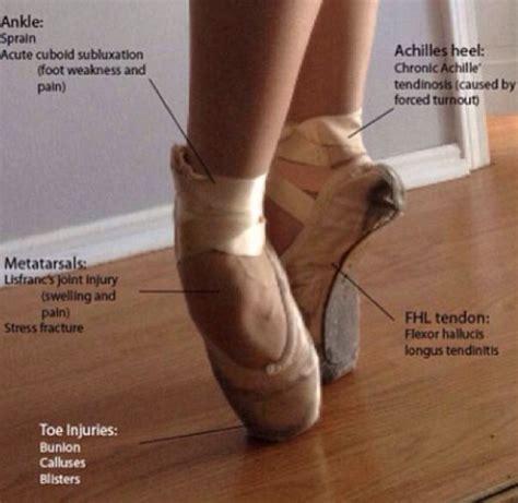 hip flexor pain in dancers feet after pointe