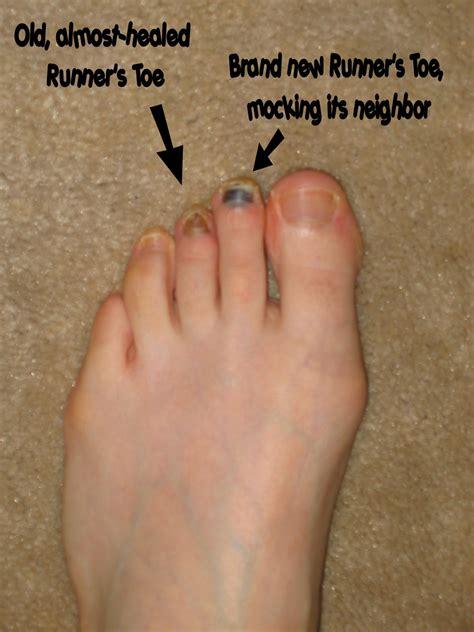 hip flexor problems in runners toenail bruise from too short