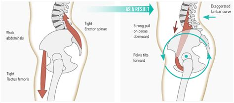 hip flexor psoas release pelvic fracture images of the fifth